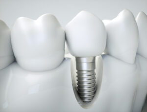 Same Day Dental Implants in Costa Rica