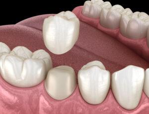 Dental Crown in Costa Rica
