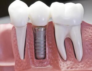 How a dental implant looks like